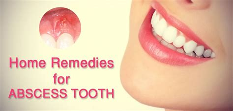 Abscessed Tooth Home Remedy by These Home Remedies For Abscess Tooth Is What Your