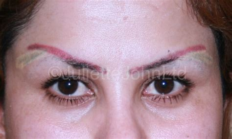 tattoo eyebrows removal special feature tattoo removal aesthetics