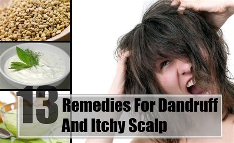 13 home remedies for dandruff and itchy scalp