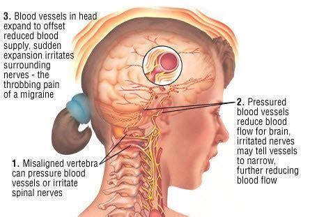 forte mal di testa e nausea comuni abitudini provocano il mal di testa