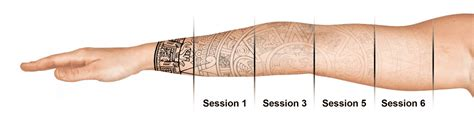 stages of tattoo removal removal in seattle using pico technology at well