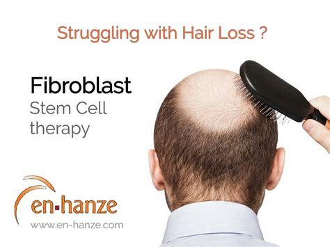 hair loss expert stylists portland en hanze medical aesthetics centre aesthetic clinic