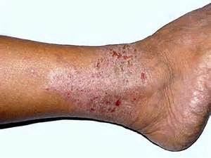 itchy legs symptoms causes treatment home remedies
