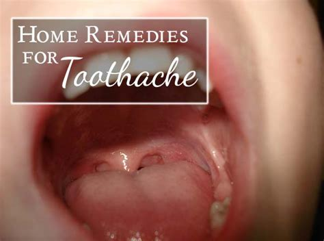16 home remedies for toothache that do work starsricha