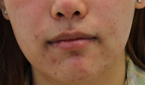 acne on chin causes and how to get rid of acne beautyhealthplus