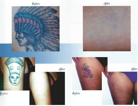 tattoo removal des moines iowa laser removal skin iowa cosmetology dermatology