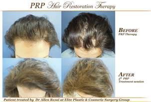 prp treatment for rejuvenation and hair restoration