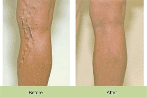 tattoo cover up makeup target leg makeup to cover veins style guru fashion glitz