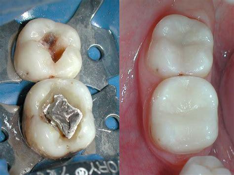 Piombatura Denti - estetica sorriso