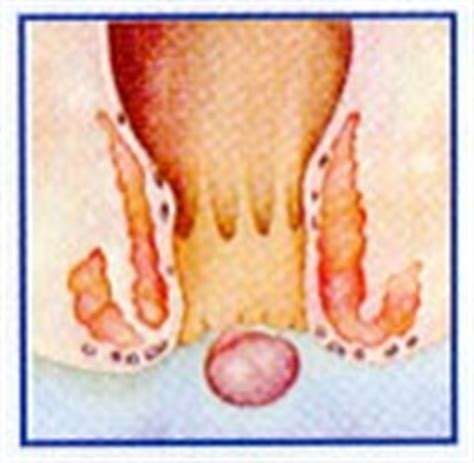 Can Hemorrhoids Cause Blood Clots In Stool by Hemorrhoid Cure