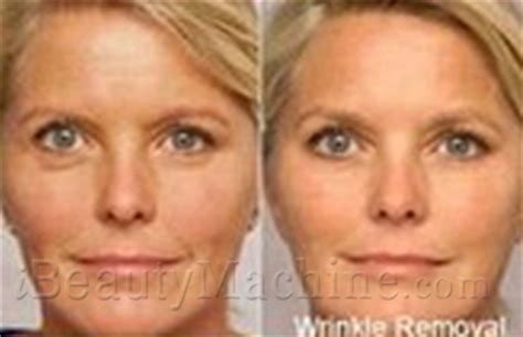 red light therapy for wrinkles before and after professional led phototherapy mask infrared ray