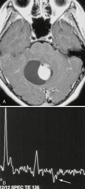 intra axial neoplasms radiology key