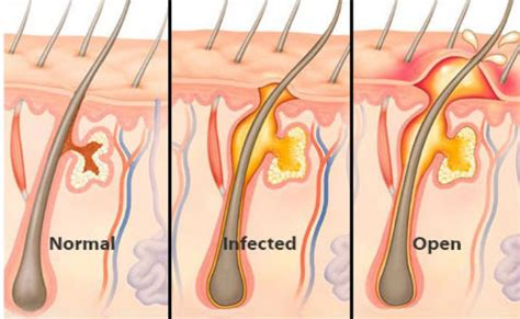 heavy hair on vigina effective home treatments to get rid of boils on inner