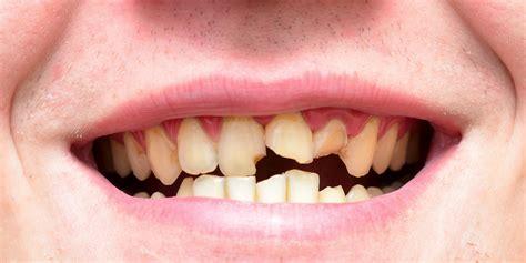 bad teeth olympians with bad teeth bodies of adonis garbage