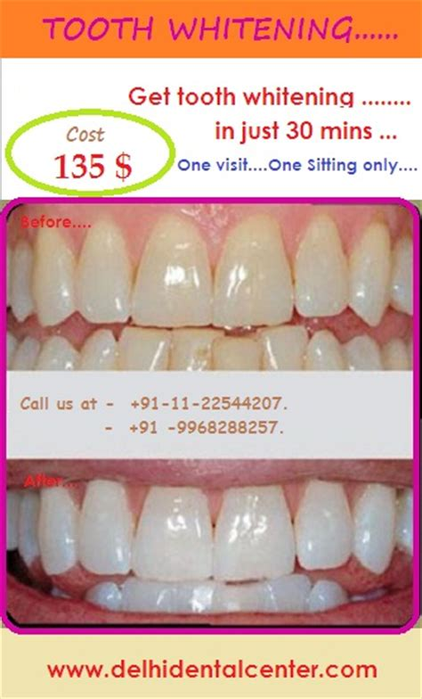 teeth whitening dentist  east delhi  mayur