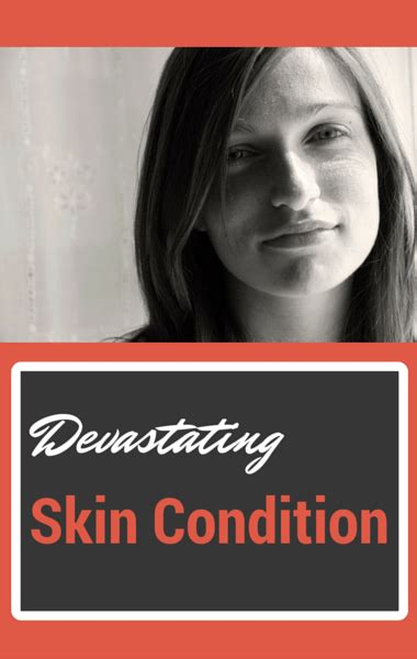 Whats Mysterious Condition by The Drs Vlogger Disability Mysterious Skin Condition