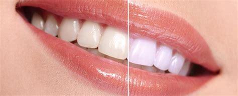 ne calgary zoom teeth whitening memorial square dental