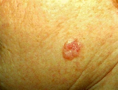 basal cell tumor nodular basal cell carcinoma seotoolnet