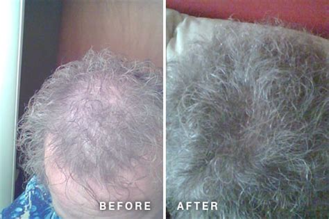 hair essentials before and after hair essentials reviews before after hair growth photos
