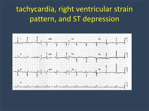 strain pattern ecg definition ppt venous air embolism vae powerpoint presentation