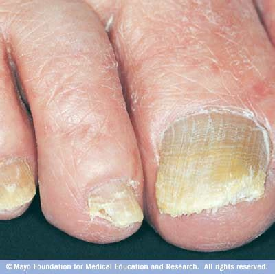 nail infection fungal toe nails onychomycosis feetandpodiatry