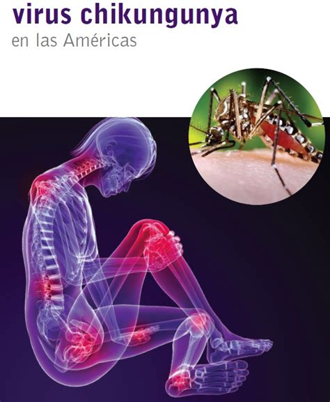 imagenes groseras sobre el chikungunya par 04 epidemiolog 237 a y control de enfermedades