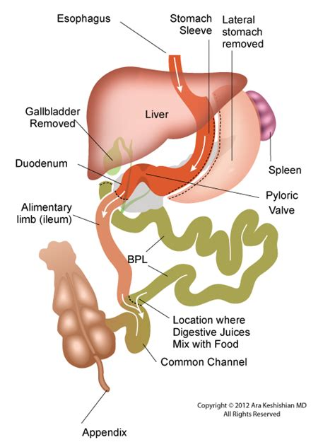 gastric bypass diagram surgery faq s bariatric cookery bariatric cookery