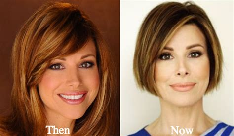dominique sachse plastic surgery before and after photos image gallery dominique sachse