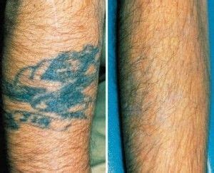 nhs tattoo removal 1000 images about laser removal on