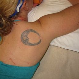 tattoo removal south florida be sf 57 photos 69 reviews