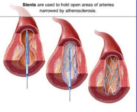 coronary angioplasty with or without stent implantation coronary stenting is a procedure of inserting a metal
