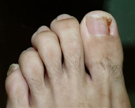 Toe Nail by Pictures Of Ingrown Toenails Ingrown Toenail