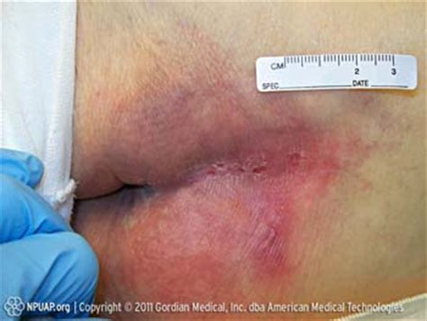 bed sores symptoms bed sores stage 1 duoderm warning a stage three bedsore