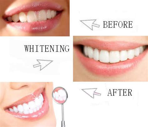 vitamin  swabs aloe  tip teeth whitening kits