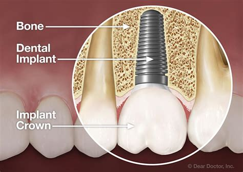 comfort dental implants teethwise dental implant dentistry in humble