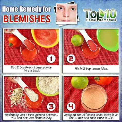 spot treatment home remedies home remedies for blemishes top 10 home remedies