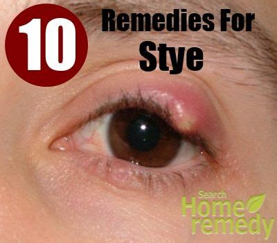 stye home remedies 10 excellent home remedies for stye health and