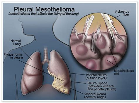 Pleural Mesothelioma Stages 5 by Maprox Sports Mesothelioma Symptoms And Warning Signs