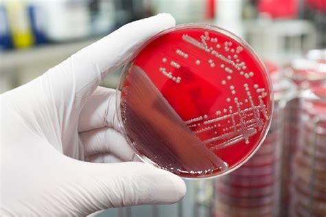 Resume Preparation Online by Microbiology Careers In India How To Become A