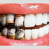 Leukoplakia Roof Of Mouth | 442 x 382 png 293kB