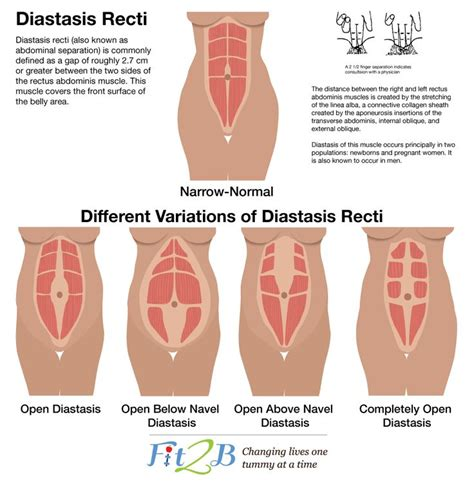 diastasis recti is a condition where the abdominal muscles separate during pregnancy and which
