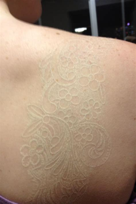 how hard is it to get a tattoo removed my white ink lace i apologize for the blur it is