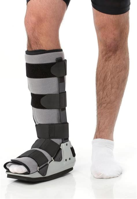 broken ankle swelling after cast removal what does the