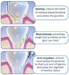 Teeth cleaning dentist dr michael duboff dmd smile designers of