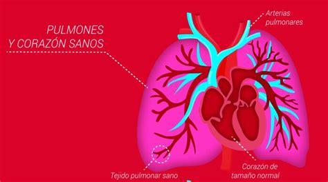 imagenes de corazones sanos blog de la fundaci 243 n contra la hipertensi 243 n pulmonar