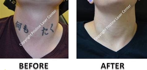 neck tattoo removal laser removal before and after photos orlando