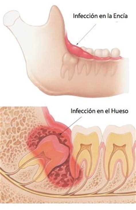 cuando salen las muelas del juicio todo sobre las muelas del juicio axioma estudi dental
