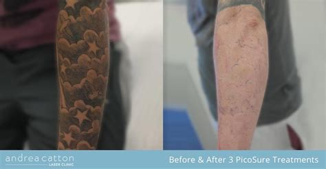 laser tattoo removal sheffield picosure 174 removal uk andrea catton laser clinic