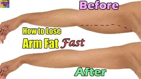 how to lose arm fast home exercise arm lose