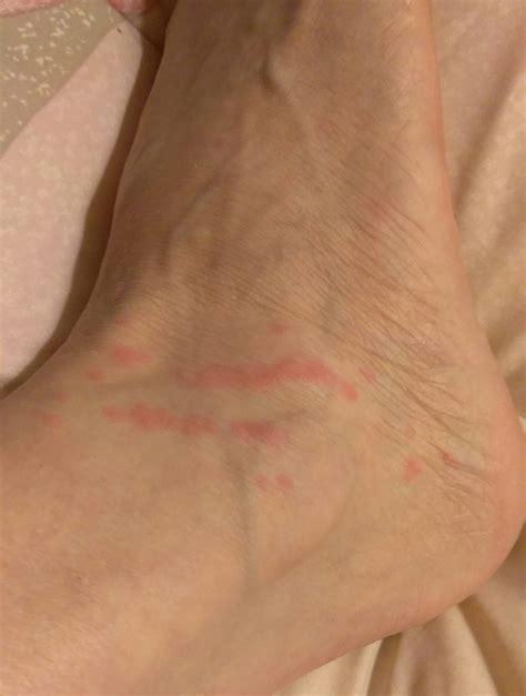 bed bug bites  foot